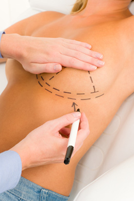 Breast Augmentation in Hughesville, PA